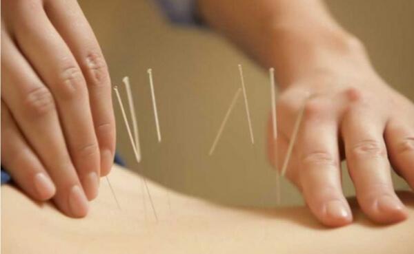 Akupunktur Uygulamasıyla Baş Ağrısı Tedavisi Eğitimi