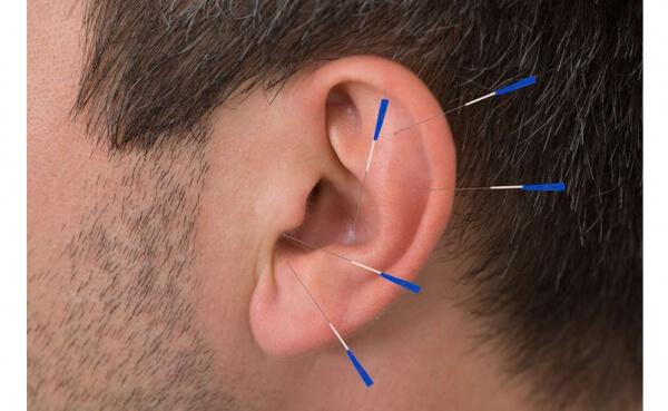 Kulak Akupunkturunun Tanı ve Tedavide Kullanılması (Geleneksel Çin Tıbbında)
