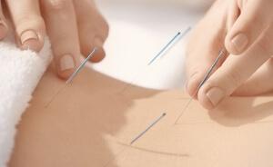 Akupunktur Uygulamasıyla Postmenopozal Sendrom ve Dismenore Tedavisi, Confluent Noktaların Akupunktur Tedavisinde Uygulama Algoritması