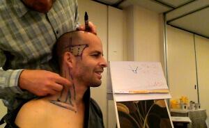 ONLINE YNSA EĞİTİMİ (Yamamoto® New Scalp Acupuncture) Basic & Intermediate Level